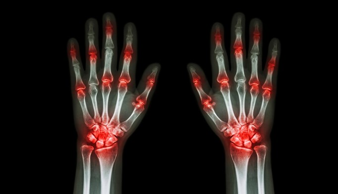 Nearly 12% of patients in remission from RA still experience clinically significant pain.