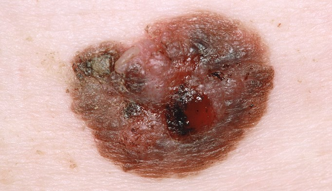Close-up of a nodular melanoma on a superficial spreading melanoma.
