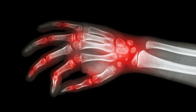 Cannabinoids may provide moderate benefit for rheumatic conditions