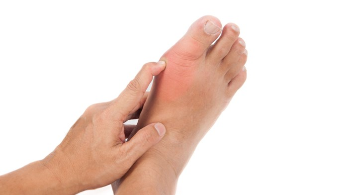 Gaps exist in clinician knowledge of gout management