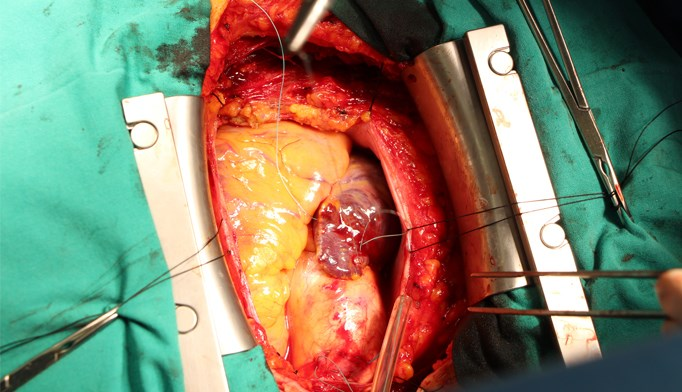 Coronary artery bypass surgery may lead to metabolic changes, causing new-onset diabetes.
