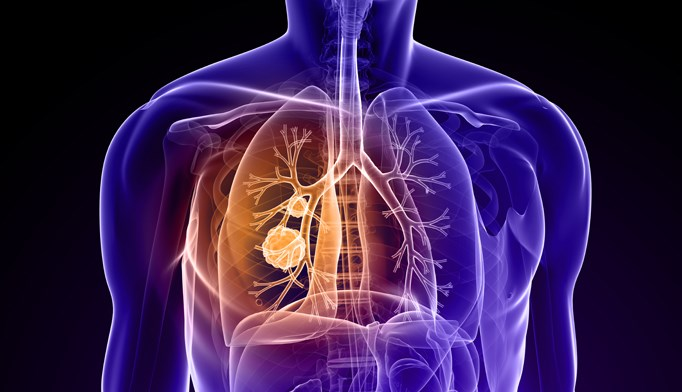 The positive correlation between lung cancer and fat intake was increased in smokers.