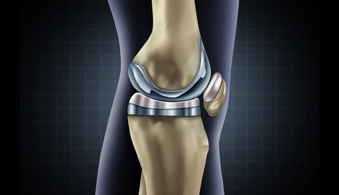Oxycodone/naloxone may be beneficial for managing pain after total knee replacement