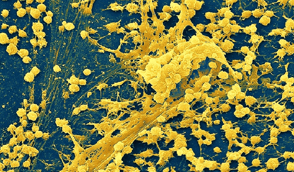 The Role Of Biofilms In Chronic Infections The Clinical