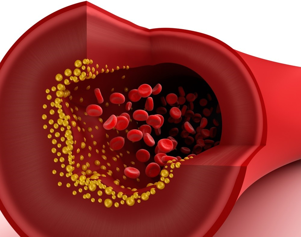 Statin and PCSK9 inhibitor combination more effective at lowering cholesterol