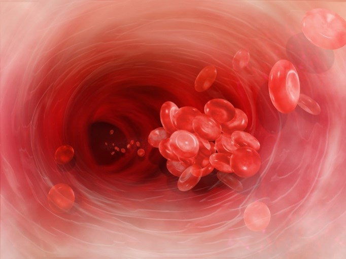 Testosterone treatment may increase risk of venous thromboembolism