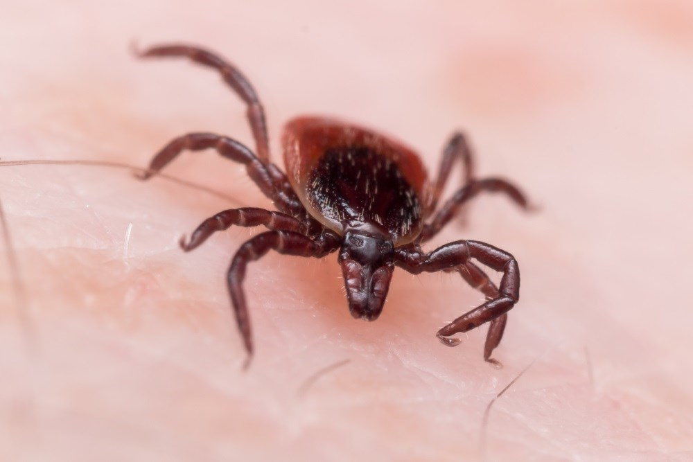 Delayed Anaphylaxis, Hypotension Following Tick Bite