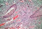 Are prostate biopsies linked to the spread of cancerous cells?