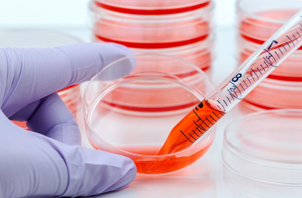 Stem cell therapy may be effective for multiple sclerosis