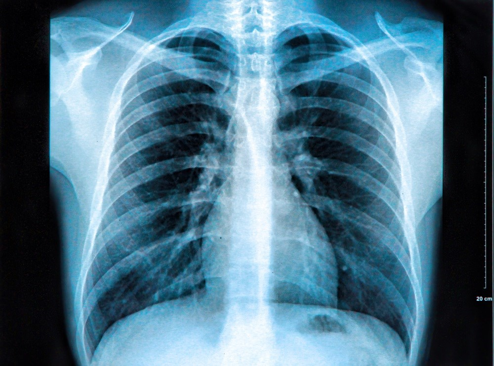 Utibron Neohaler available for long-term treatment of COPD