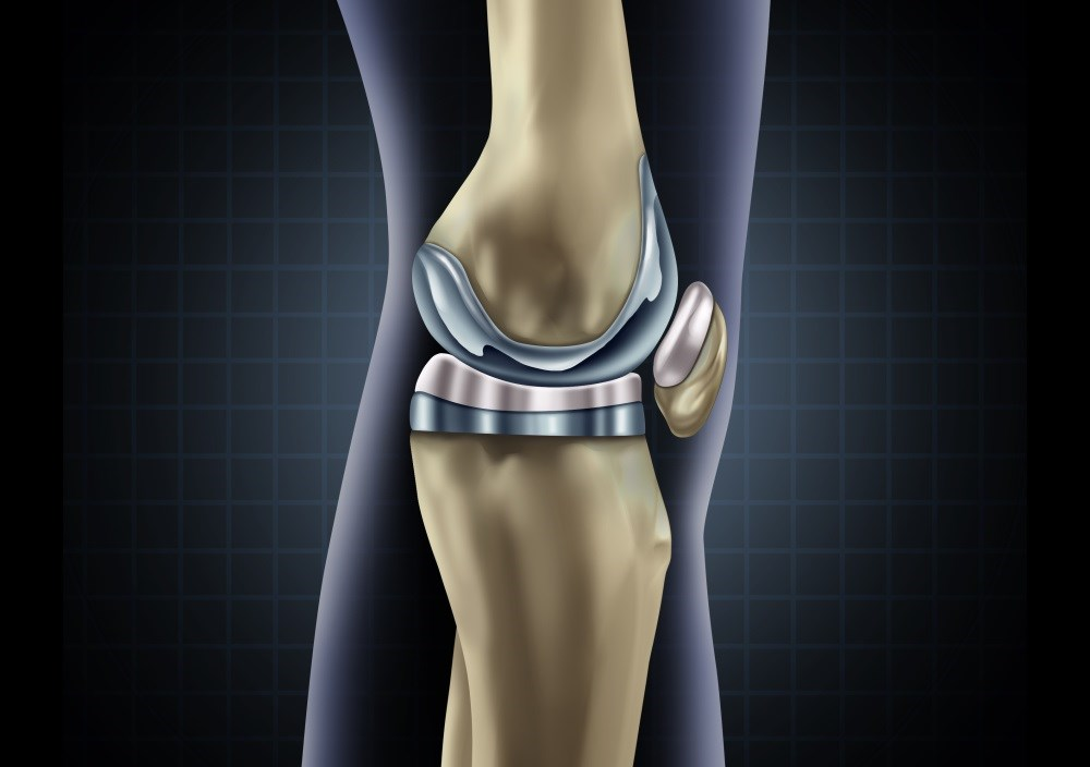 Total knee replacement for osteoarthritis has minimal effect on quality of life