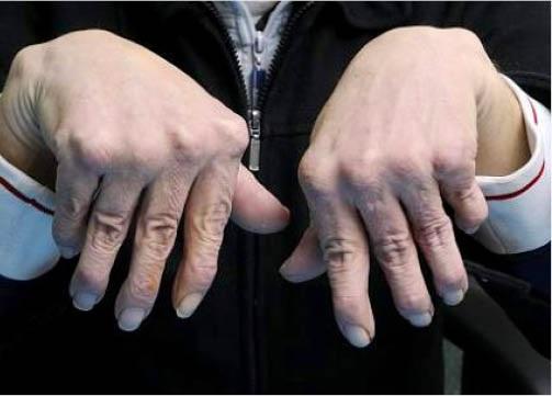 Tratamentul artritei articula?iilor mainii