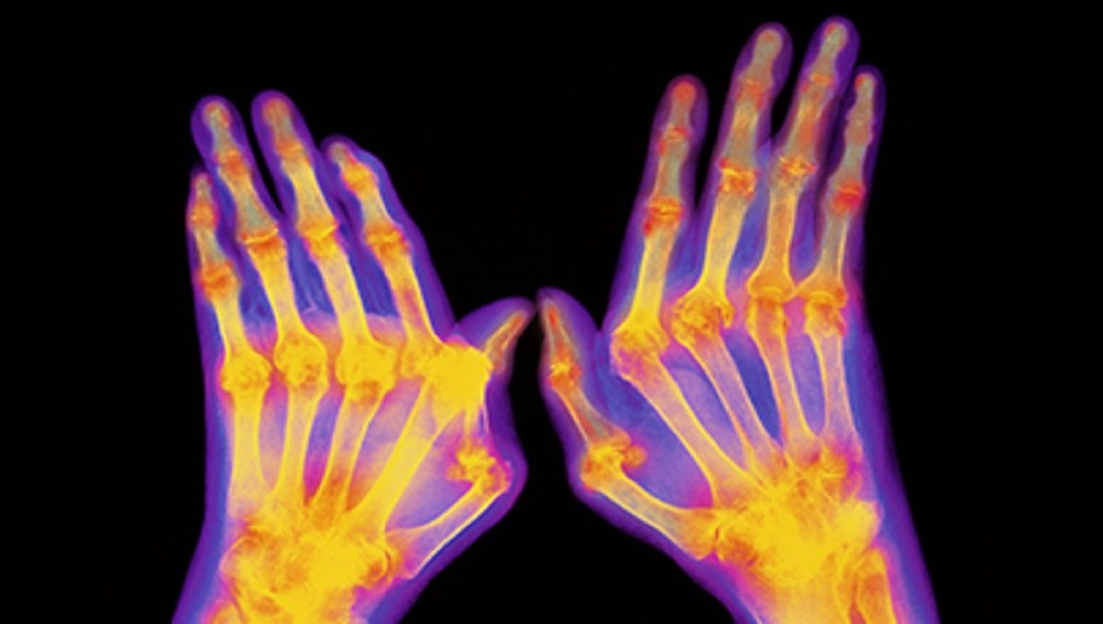 Early diagnosis and aggressive treatment are essential to mitigate the cascading events that lead to irreversible joint erosion in rheumatoid arthritis.