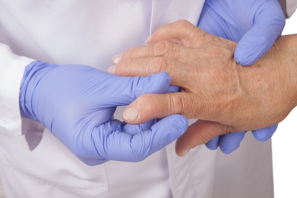 Hand osteoarthritis will affect about 40% of people