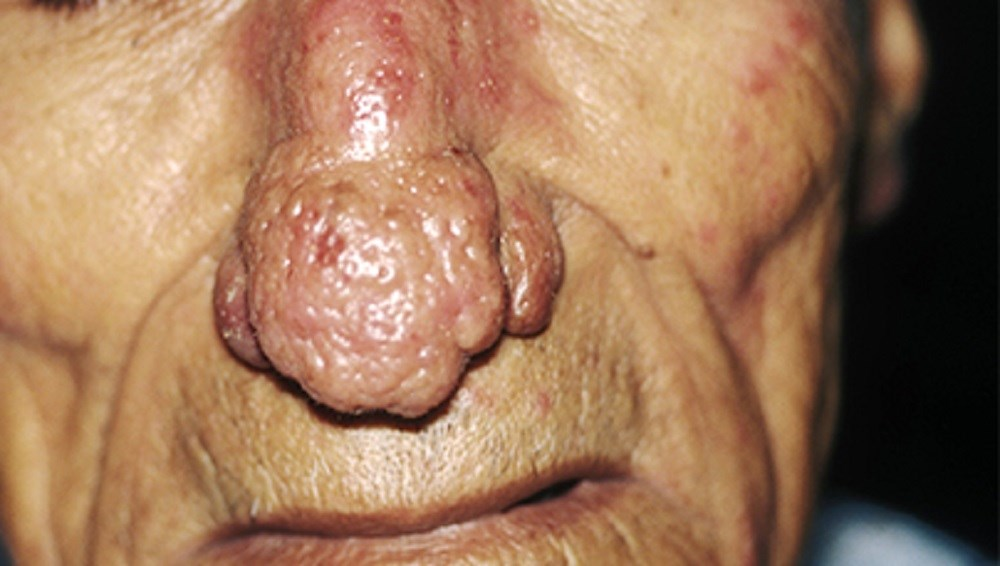 Rhinophyma, a severe form of rosacea, in a 60-year-old man.