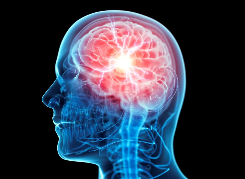 Even a mild concussion can cause changes to a patient's normal physical, cognitive, and emotional functioning.