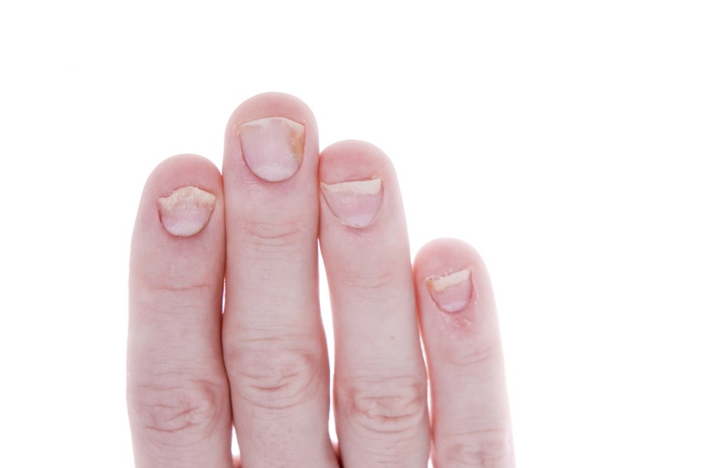 Tofacitinib treatment resulted in improvements in nail psoriasis vs placebo at 16 weeks.