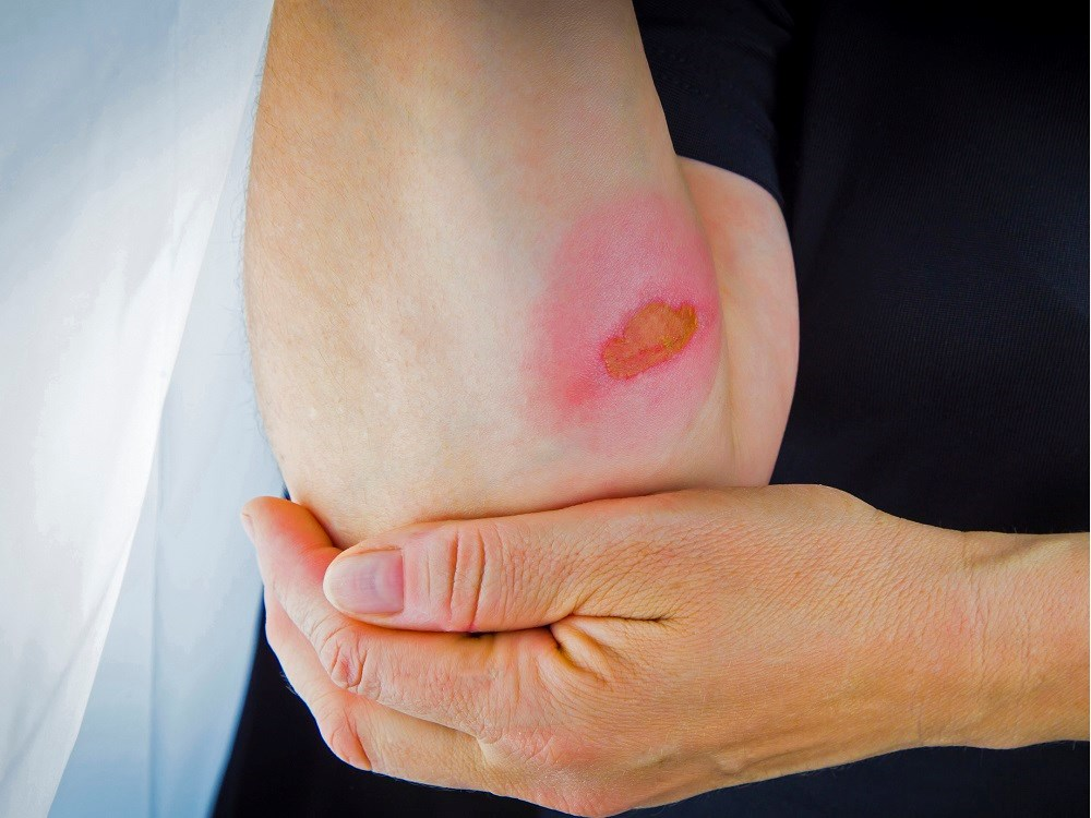 The most common causes of minor superficial burns are sunburns and minor thermal injuries.