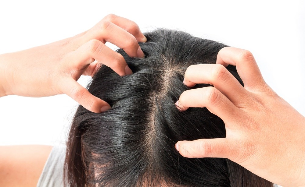 Common side effects of scalp psoriasis include itching, scratching, loss of sleep, an increase in presenteeism, absenteeism, and not wearing dark clothing due to embarrassment.