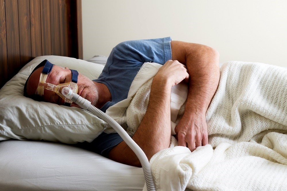 Obesity is a likely contributor to obstructive sleep apnea and has a considerable prevalence in patients with asthma.
