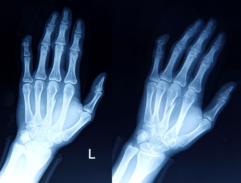 Joint pain in a 69-year-old male patient included his wrists, elbows, hands, and knees.