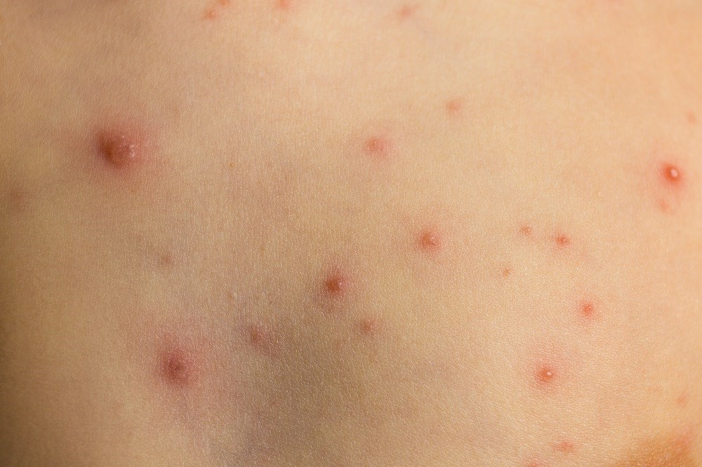 CDC committee recommends new shingles vaccine