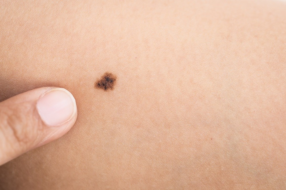 AJCC melanoma staging system is revised