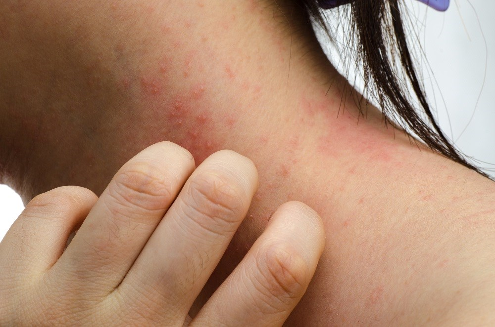 The study compared treatment with methotrexate vs cyclosporine for moderate to severe atopic dermatitis.