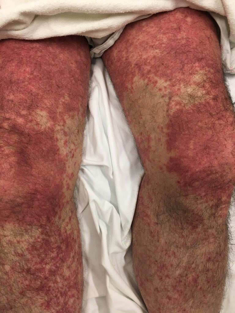Nonblanching Rash and Diarrhea: What's the Diagnosis?