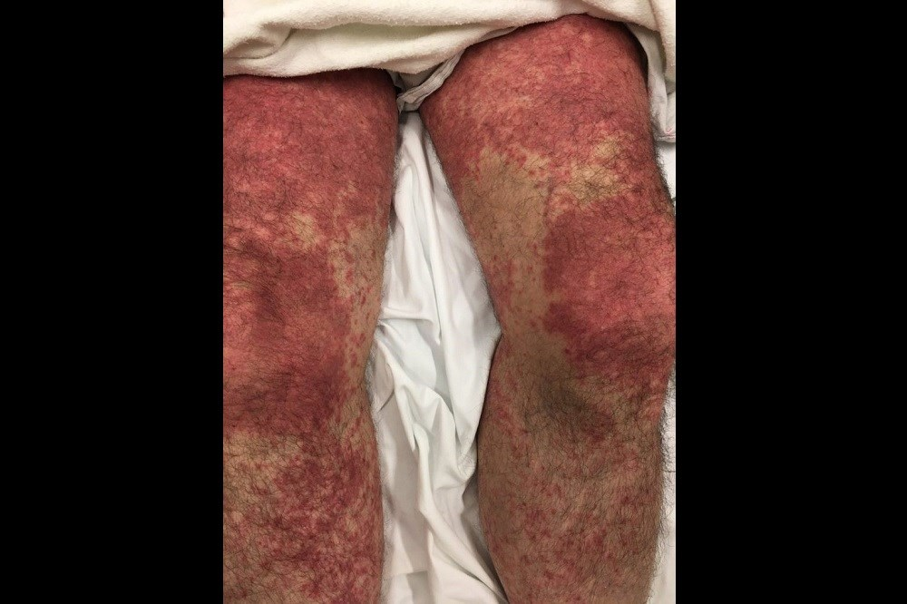 Case Study: Diarrhea and rash
