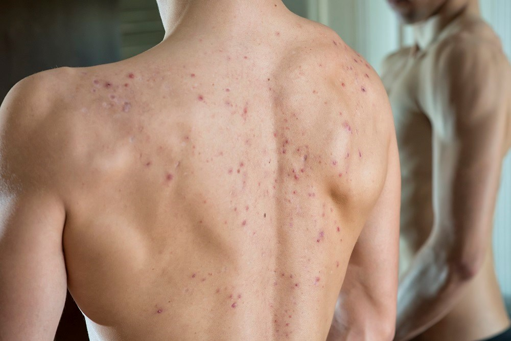Adolescent acne not linked to malignant melanoma in men