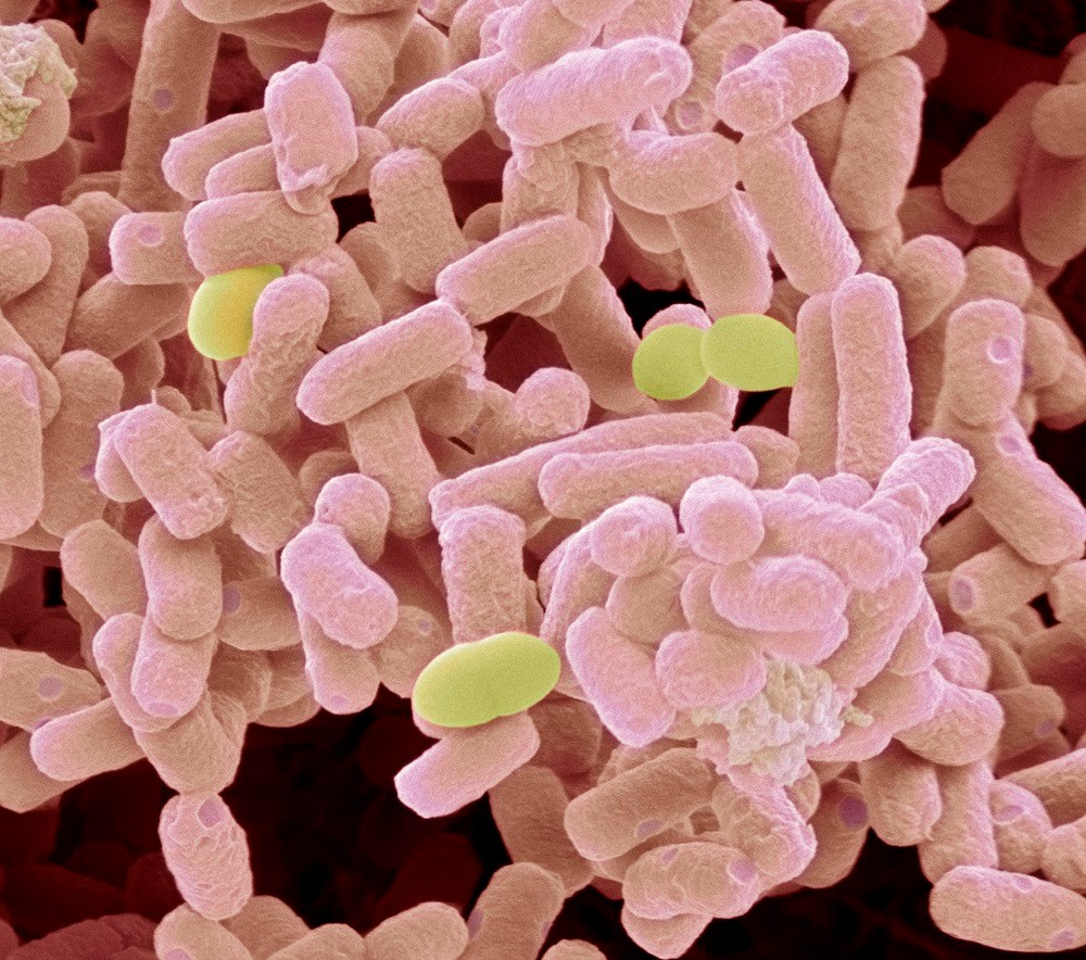 CDC investigating E. coli outbreak in 13 states