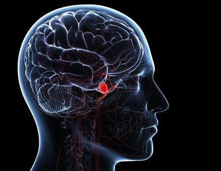Predicting mortality and outcomes after a subarachnoid hemorrhage