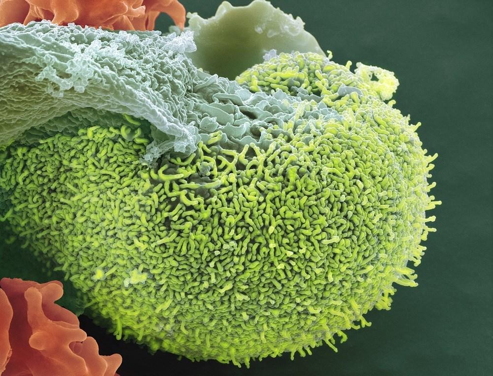 Managing acute UTIs in postmenopausal women