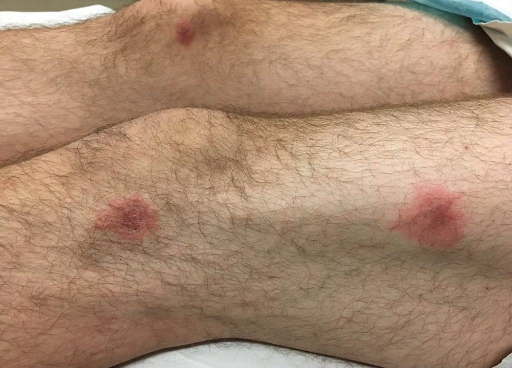 Case Study: A gradually progressive rash after a URI