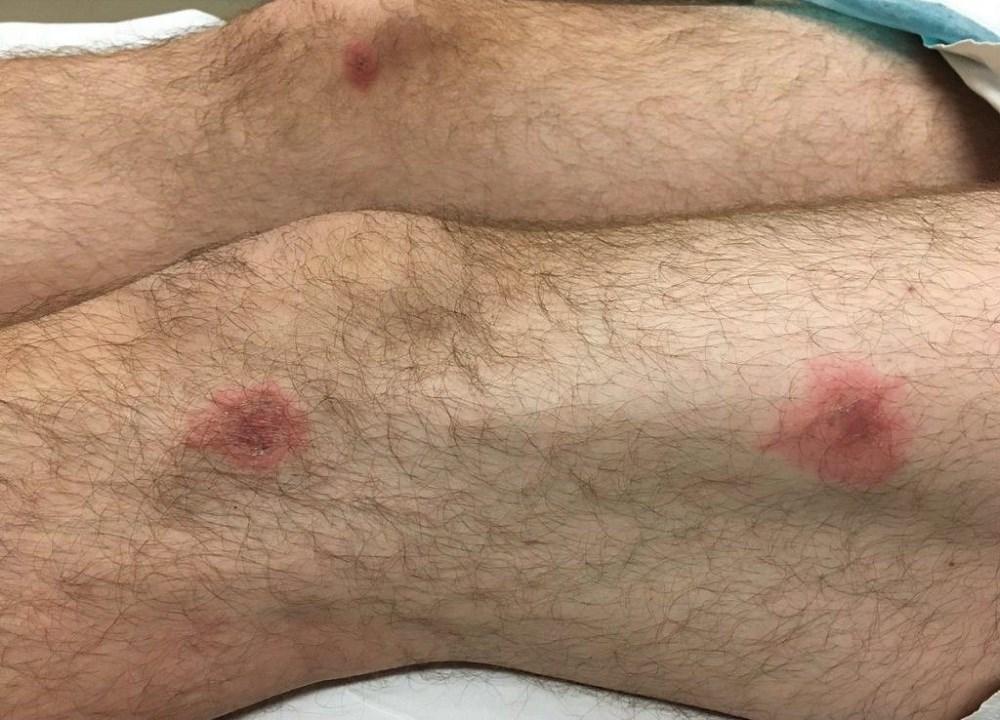 Case Study: A gradually progressive rash after a URI