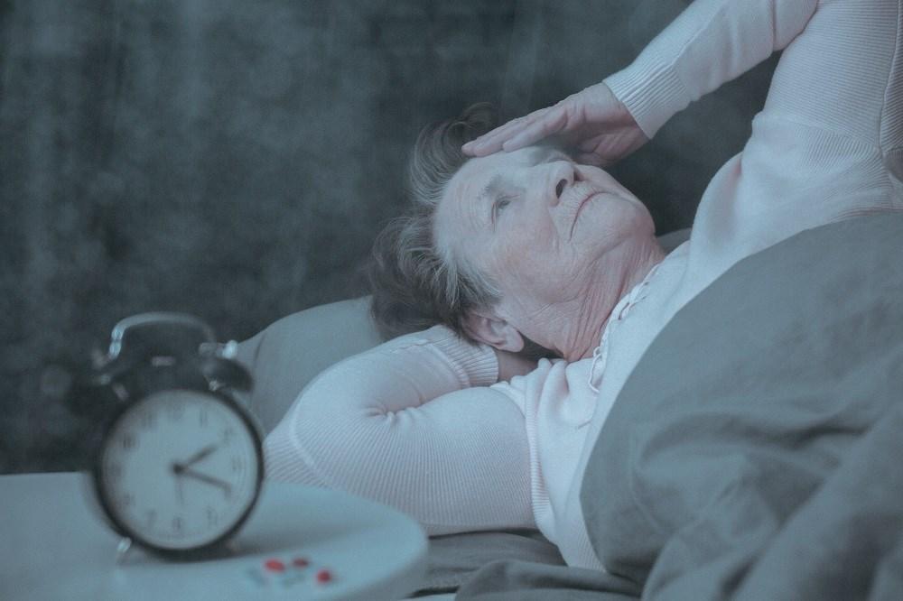 Sleep wake regulation in progressive supranuclear palsy