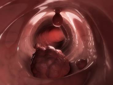 Anemia Criteria Assist Decision on Type of Colorectal Cancer Screen