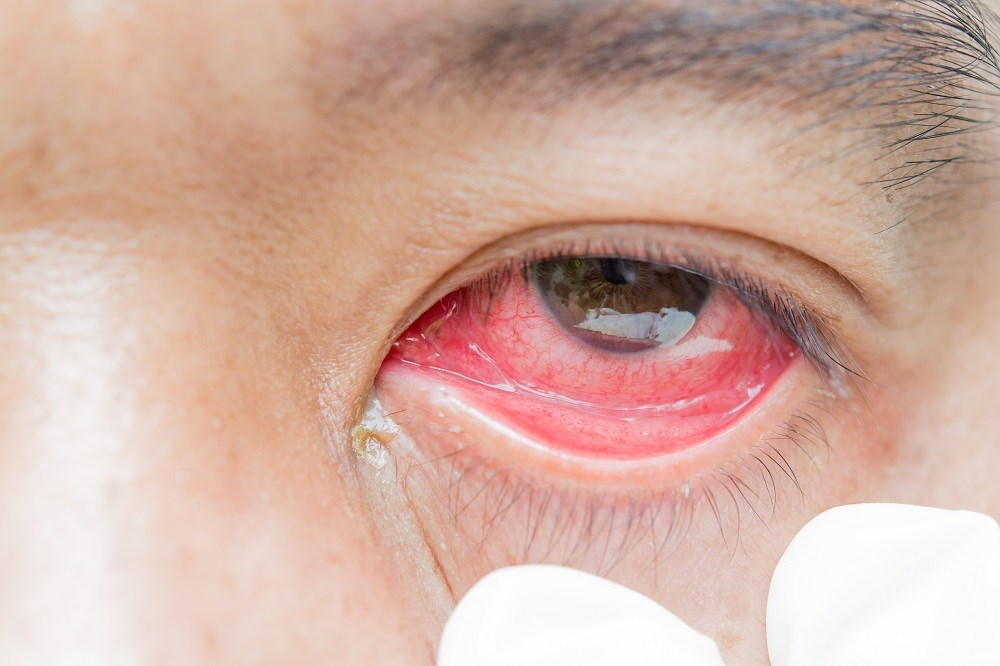 Pink Eye: Prevention and Treatment Tips from the CDC