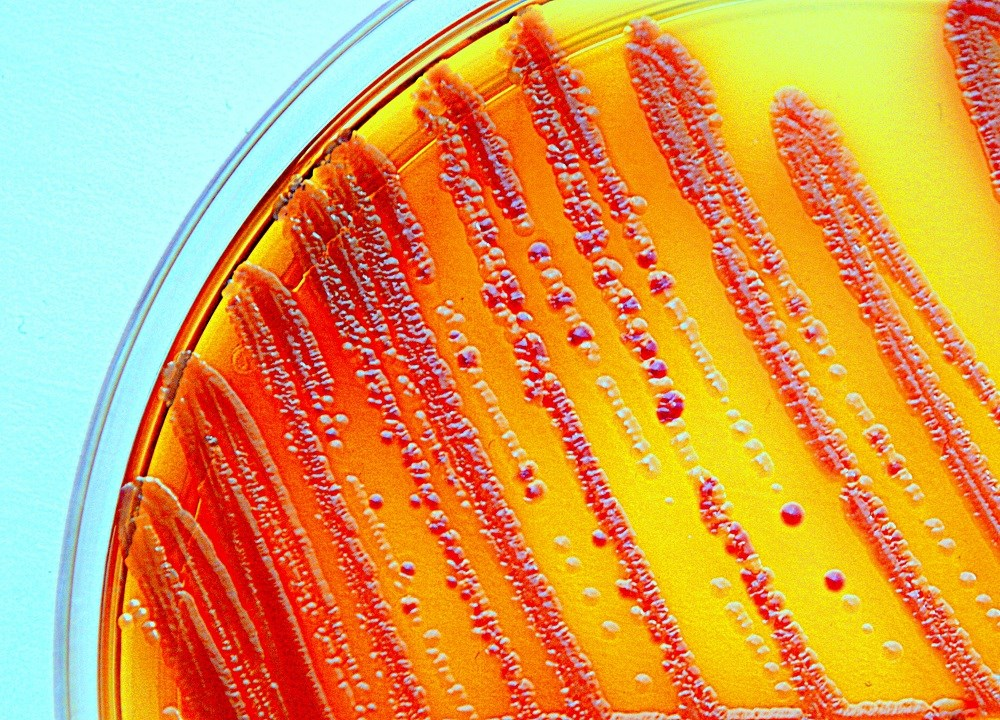 Antibiotic-resistant bacteria found in 221 US healthcare facilities in 2017