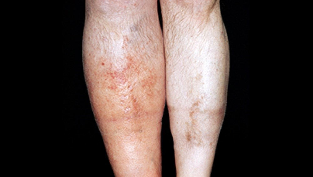 Deep vein thrombosis in the lower leg (on left) of  a 61-year-old man.