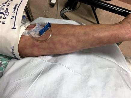 Case Report: Skin Mottling Linked to Infection
