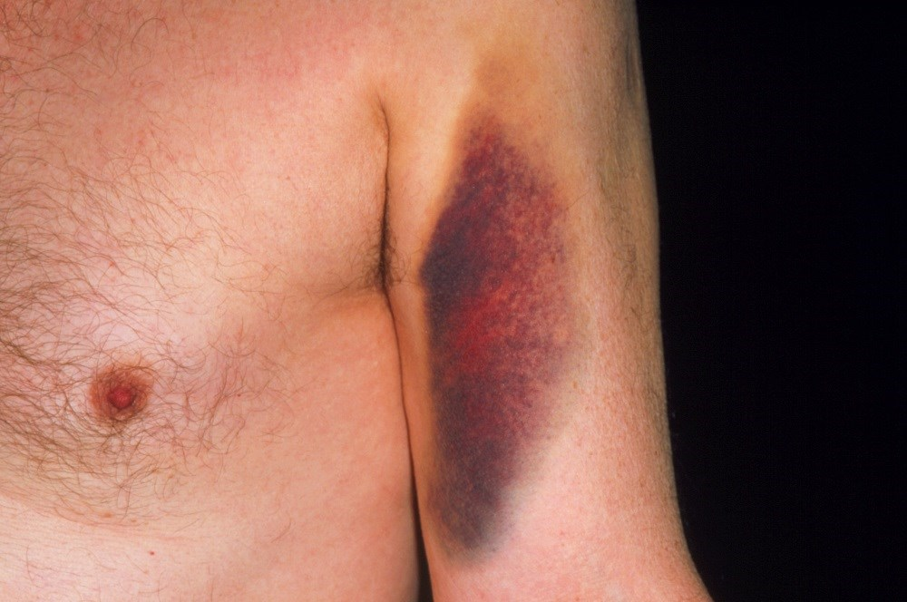 Spontaneous bruising caused by use of warfarin.