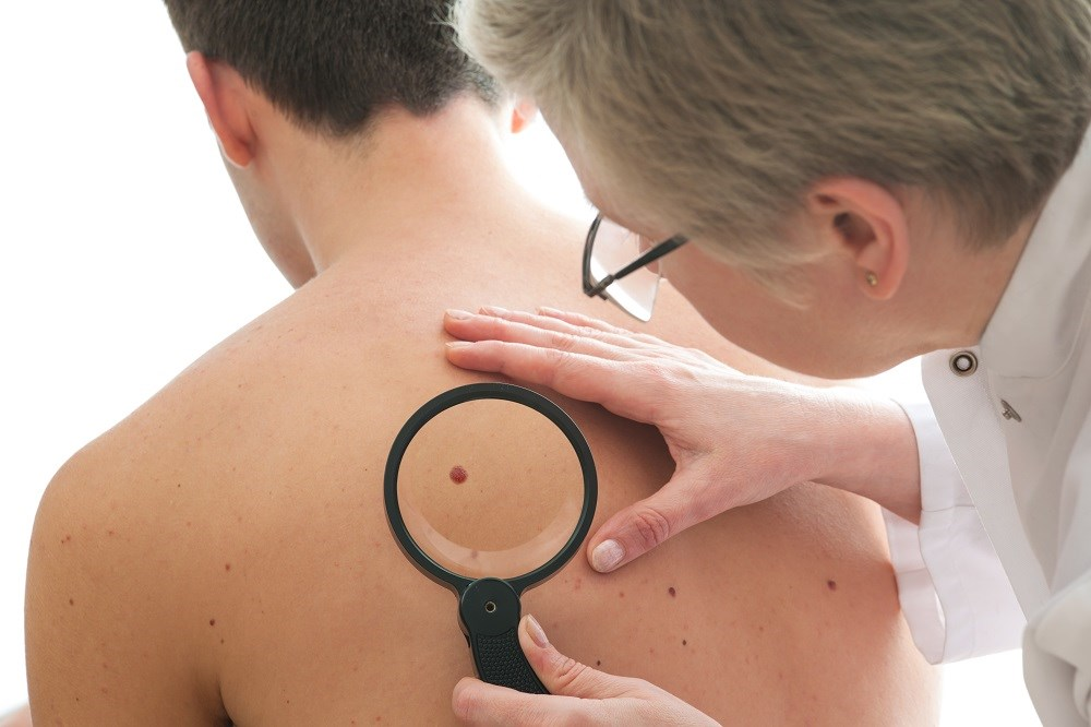 Chronic Aspirin Exposure Linked to Melanoma Risk in Males