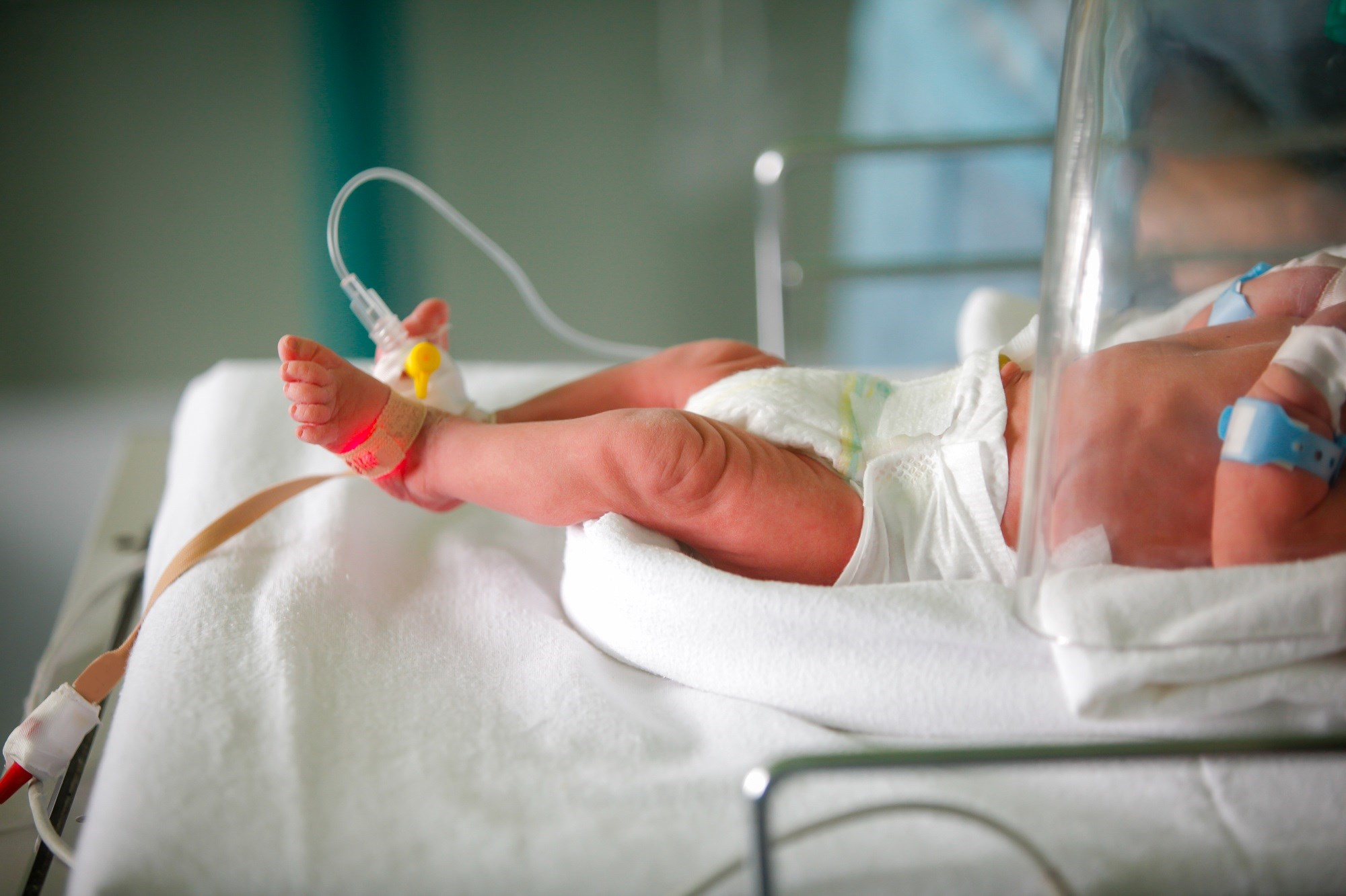 Infant HIV Infection Increases the Risk for Congenital CMV Infection