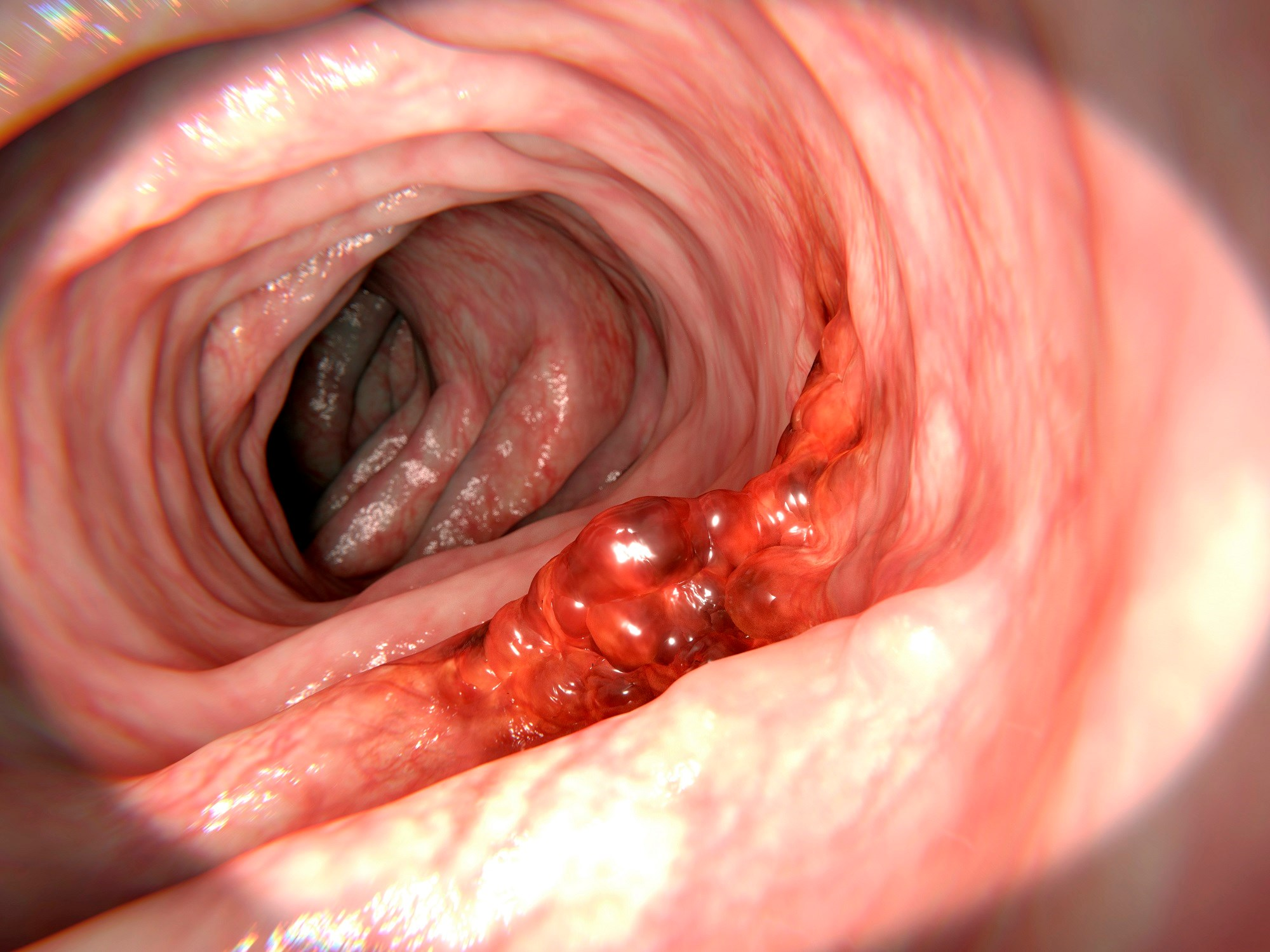 Patients With Gout Have Lower Prevalence of Colorectal Cancer
