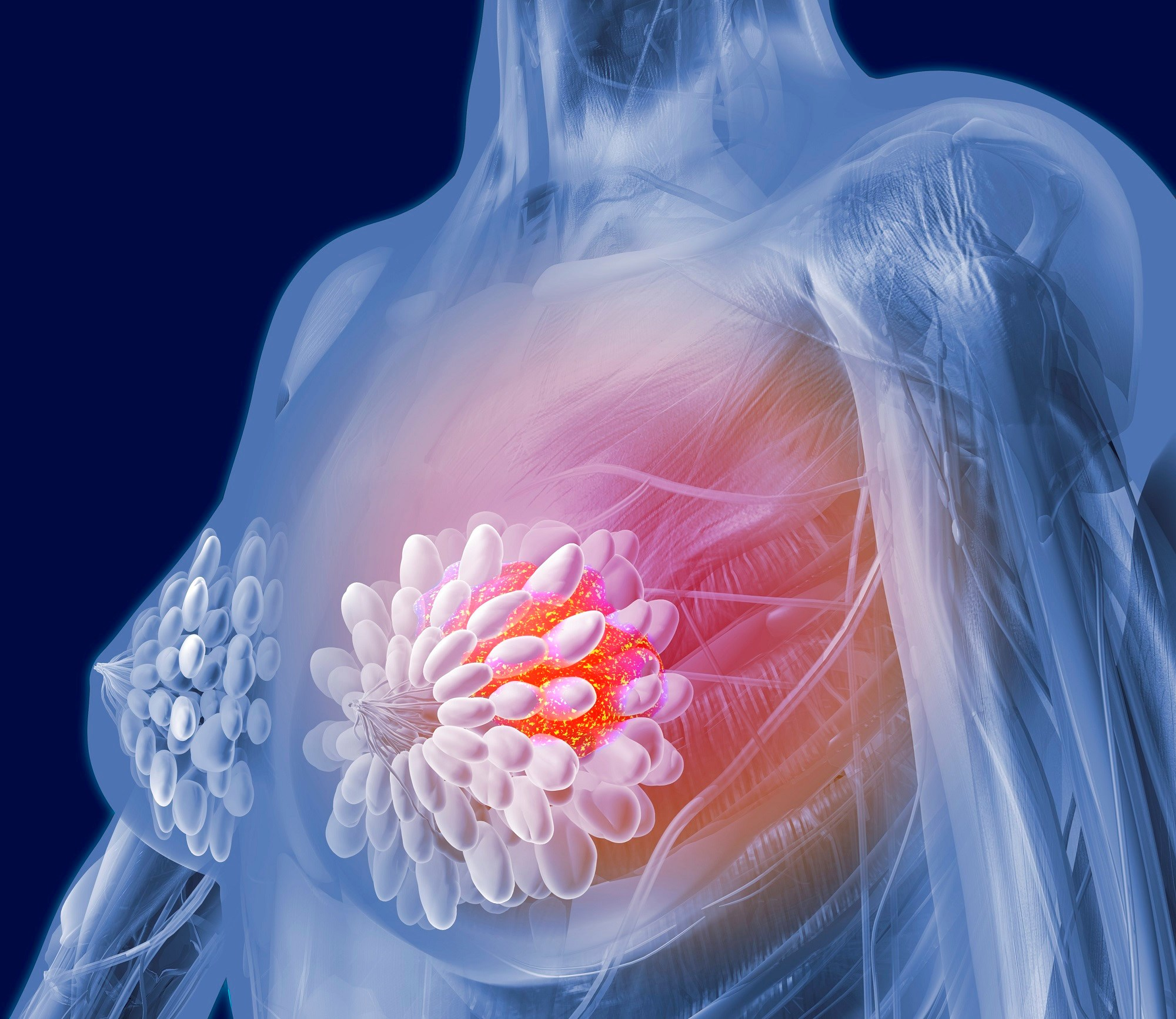 Ribociclib Prolongs Progression-Free Survival in Premenopausal Breast Cancer