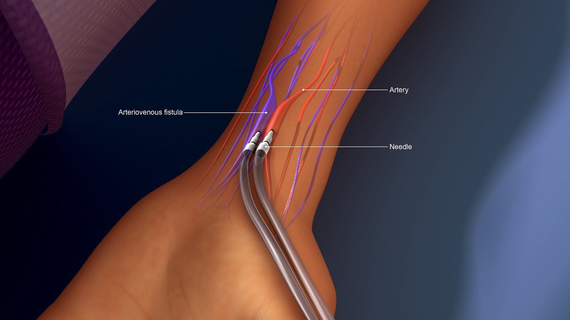 FDA Permits Marketing of Devices to Create Arteriovenous Fistula