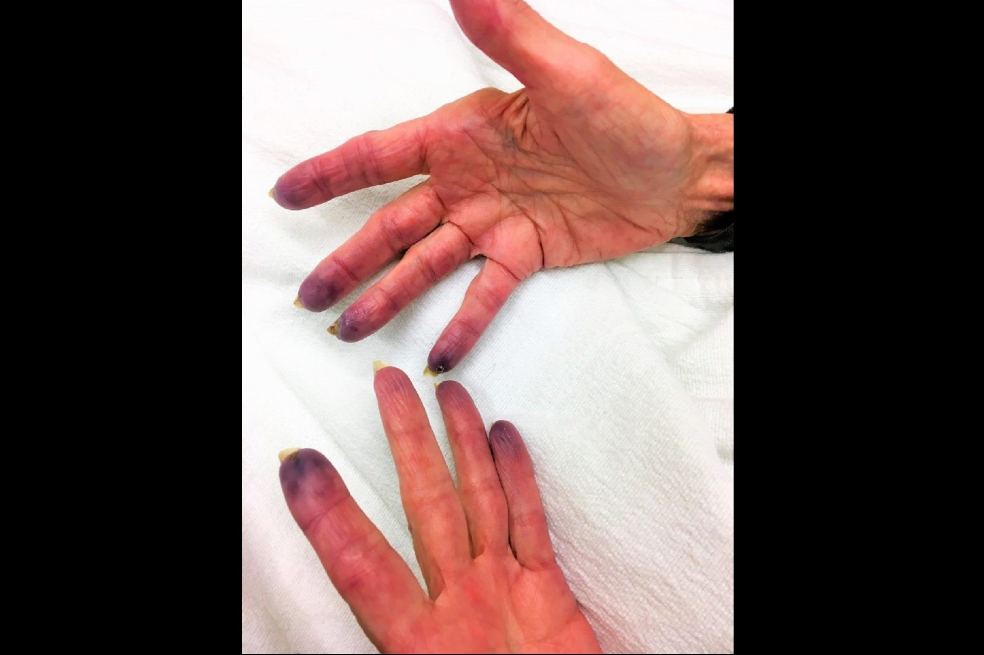 Case Study: Purple Fingertips in an Elderly Woman