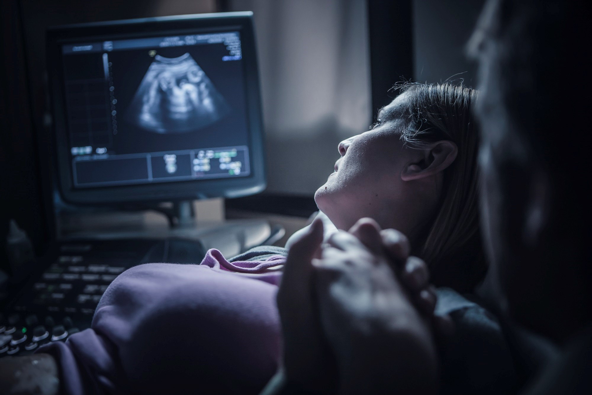 No significant decrease in miscarriage rates was found in women treated with cfDNA with direct invasive procedures when warranted vs direct invasive procedures alone.
